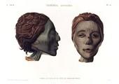 A Vol. II — Thèbes. Hypogées — Pl. 50 - Profil et face d'une tête de momie de femme